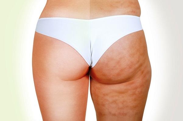 Cellulite, come eliminarla con i rimedi naturali e la dieta