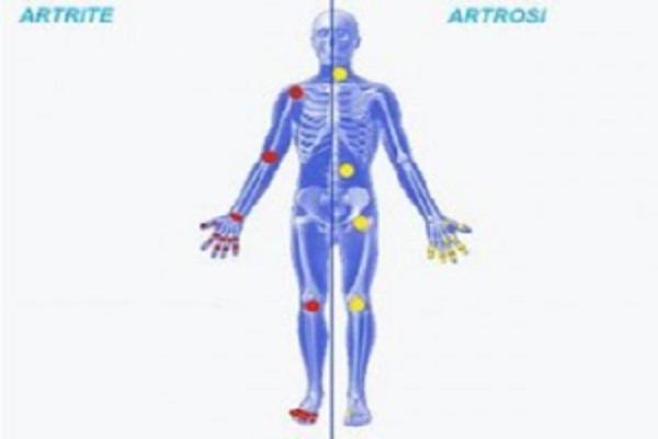 artrite o artrosi come riconoscere le differenza cura adeguata