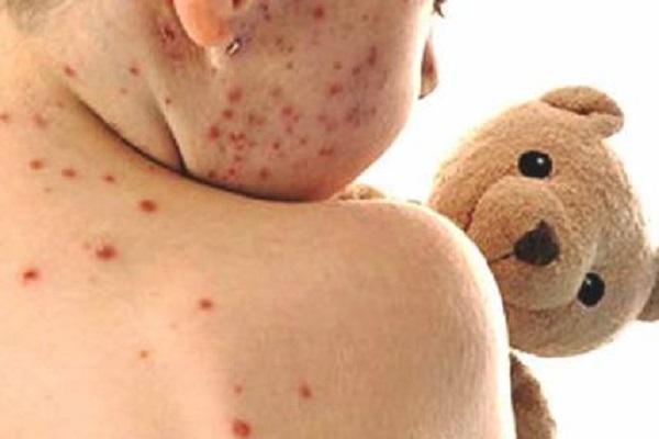 Epidemia morbillo, il contagio non si ferma: le vaccinazioni ci salveranno?