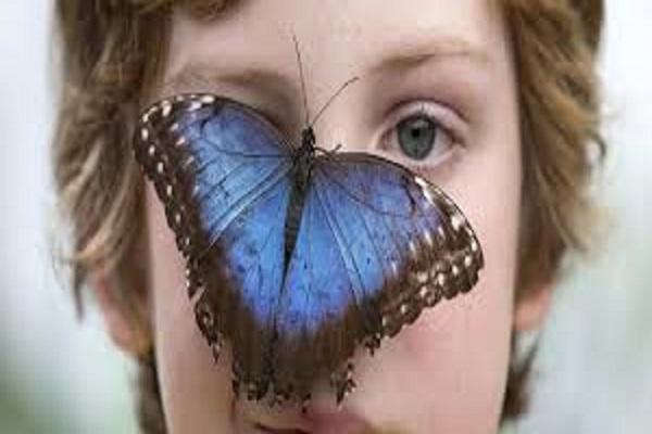 Sindrome Bambino Farfalla o malattia epidermolisi bollosa, che cos'è e quali sono sintomi e cure