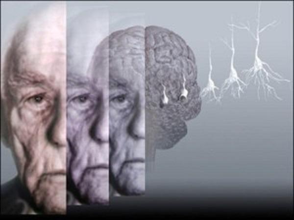 Alzheimer, ansia primo indicatore della malattia