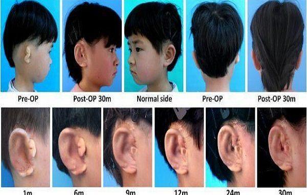 Riprodotto un orecchio a cinque bambini malformati: usate cellule e stampante 3D