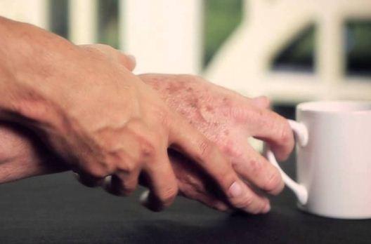 A Verona la macchina che cura i tremori del Parkinson