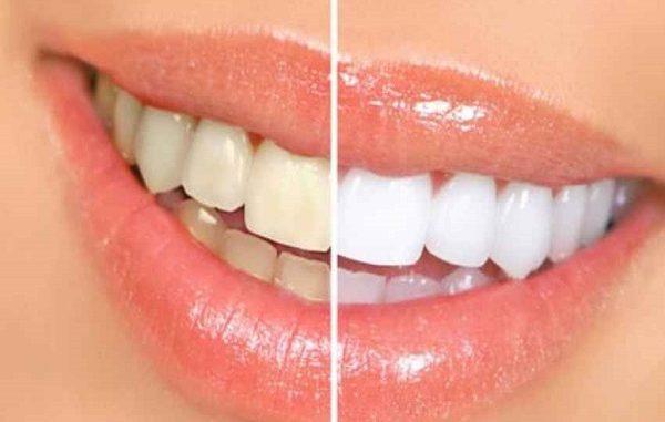 Denti bianchi rovinati da diete e drink, perché?
