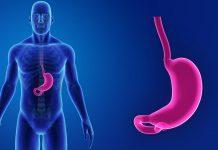 reflusso-cause-sintomi-soluzioni-dieta-stile