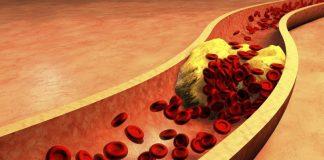 colesterolo-alto-4-alimenti-abbassarlo